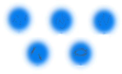 各种形状的飞蚊 长时间用电脑当心眼睛飞蚊症 文章